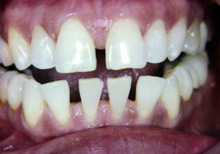 Dental Bonding Procedures in Bogota, NJ