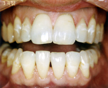 Teeth Whitening in Bogota, NJ